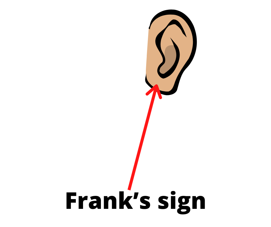 Frank's sign